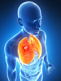 Polmone maschio - cancro Immagini Stock