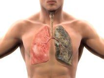 Polmone sano e polmone dei fumatori Fotografie Stock Libere da Diritti