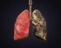 Polmone sano e polmone dei fumatori Fotografia Stock Libera da Diritti