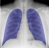 Polmoni sull'esame radiografico del torace immagini stock libere da diritti