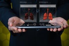 Polmoni umani sul computer della compressa Fotografie Stock