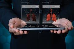 Polmoni umani sul computer della compressa Fotografia Stock