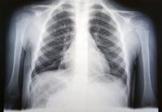 Polmonite Fotografia Stock