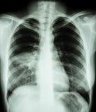 polmonite fotografia stock libera da diritti