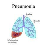 polmonite La struttura anatomica dell'essere umano Fotografia Stock