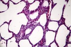 Polmonite, micrografo leggero immagine stock libera da diritti