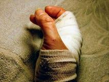 Polso bendato femminile con i tagli su un fondo dello strato di Terry Fine in su immagine stock