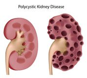 Polycystic kidney disease Stock Photo