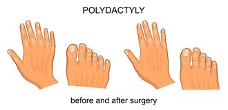 Polydactyly before and after surgery. Vector illustration of polydactyly before and after surgery Stock Image