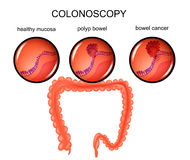 Polyp of the large intestine and cancer. Vector illustration of a colon polyp and cancer Royalty Free Stock Photos