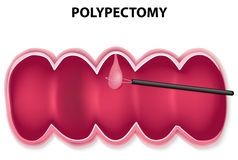 Polypectomy. Polyp removal. Polypectomy is performed by passing a wire loop through the colonoscope and snaring the base of the polyp, then retrieved Royalty Free Stock Image