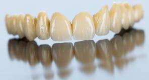 Pont dentaire de porcelaine sur la surface de miroir photo libre de droits
