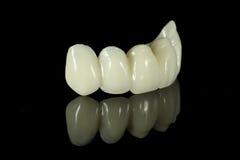 Pont dentaire en dent Image stock