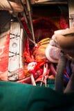 Pontage de l'artère coronaire greffant l'artère marginale obtuse photographie stock