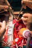 Pontage de l'artère coronaire greffant l'artère marginale obtuse photos libres de droits