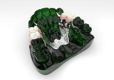 ponte dental removível Imagem de Stock