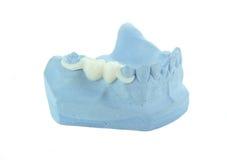Ponticello della porcellana sul modello blu Fotografia Stock