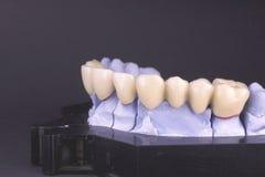 Ponticello dentale Fotografia Stock