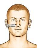 Ponto EX-HN8 Shangyingxiang da acupuntura do desenho, ilustração 3D Fotografia de Stock