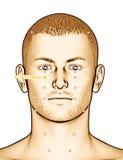 Ponto ST2 Sibai da acupuntura do desenho, ilustração 3D Imagens de Stock Royalty Free