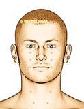 Ponto ST8 Touwei da acupuntura do desenho, ilustração 3D Imagem de Stock Royalty Free