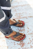 Poor boy wearing flip-flops Stock Photography