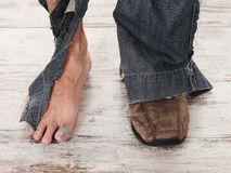 Poor feets Royalty Free Stock Photo
