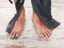 Poor feets Royalty Free Stock Images