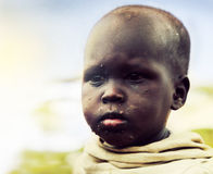 Poor young child portrait. Tanzania, Africa. Ngorongoro Conservation Area, TANZANIA, AFRICA - DECEMBER 11: Poor young child with face herpes portrait on December Stock Photography