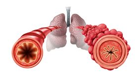 Free Popcorn Lung Stock Photos - 164971803