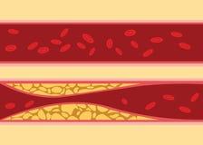 Porównanie między normalnym i niezdrowym cholesterol ludzkiej krwi żyły komórki strumienia przepływem z sadłem na stronie z miesz Zdjęcie Stock