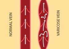 Porównanie porównuje między normalną żyłą i żylakowatą żyłą w pionowo wyrównaniu Fotografia Stock