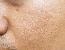 Por och oljiga på för manframsida för yttersida ung asiatisk hud tar inte omsorg på länge Arkivbild