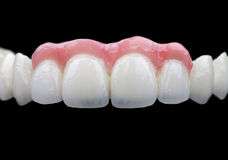 Porcelain teeth Stock Image