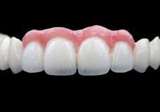 Porcelain teeth Stock Image