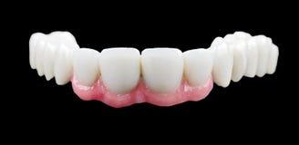Porcelain teeth. The porcelain bridge on isolated black background Royalty Free Stock Photo