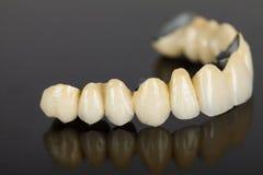Porcelain teeth - dental bridge Stock Photos
