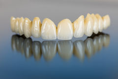 Porcelain teeth - dental bridge Royalty Free Stock Photo