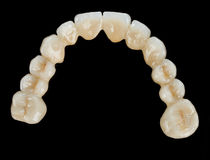 Porcelain teeth - dental bridge Royalty Free Stock Photography