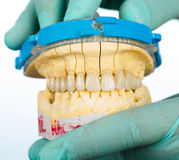 Porcelain teeth - dental bridge Royalty Free Stock Photos
