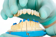 Porcelain teeth - dental bridge Royalty Free Stock Images