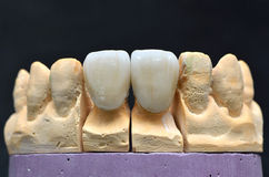 Porcelain teeth dental implant. Picture of two front porcelain teeth dental implant model inserted in a special cement denture model support Royalty Free Stock Photography