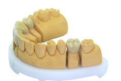 Porcelain teeth on a gypsum model Royalty Free Stock Images