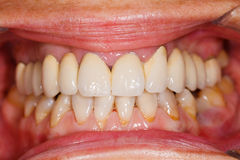 Porcelain teeth in human mouth royalty free stock photos
