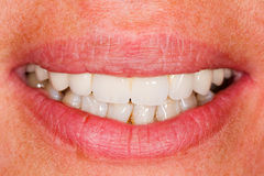 Porcelain teeth in human mouth stock photo