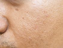 Free Pores And Oily On Surface Young Asian Man Face Skin Do Not Take Care For A Long Time Stock Photography - 99027072