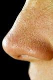 Pores gordos do nariz Imagens de Stock