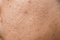 Pores i wazeliniarski na nawierzchniowej młodej azjatykciej mężczyzna twarzy skórze no biorą opieki przez długi czas zdjęcie stock