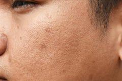 Pores i wazeliniarski na nawierzchniowej młodej azjatykciej mężczyzna twarzy skórze no biorą opieki przez długi czas zdjęcie royalty free