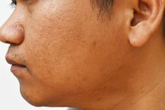 Pores i wazeliniarski na nawierzchniowej młodej azjatykciej mężczyzna twarzy skórze no biorą opieki przez długi czas fotografia royalty free